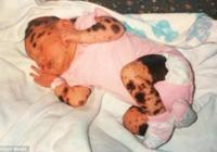 美國女孩一生下渾身是痣,被嘲笑為斑點狗,長大後生下無痣的孩子