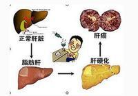 查出脂肪肝怎麼辦?以節食來治脂肪肝不可取!有效防治脂肪肝方法