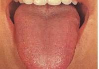 中醫四診望診之舌診舌質篇