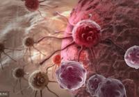 一種處於良性跟惡性之間的腫瘤,這種腫瘤的轉移不像其他腫瘤一樣