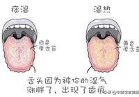 身體出現這幾類現象,證明你體內溼毒很嚴重,解決溼毒還需這樣做