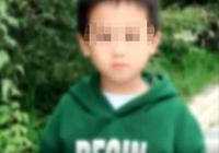 心痛!寧波5歲男孩遭大狗瘋狂撕咬 渾身上下沒一處好的