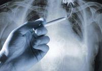 肺結核是什麼 肺結核怎麼治療