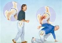 常見骨質疏鬆性骨折之髖部骨折