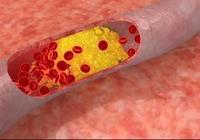 血管硬化和動脈硬化有什麼區別?
