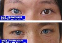 神祕的虹膜藍眼——你的眼睛什麼顏色?