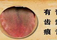 """教你四步破解舌頭上的""""摩斯密碼"""",一招搞定身體上的各種疾病"""