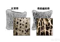 得了骨質疏鬆,身體會出現哪些變化?需要注意哪些問題?