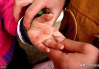 身邊有孩子得手足口病,預防自家孩子被傳染,得做好6件事