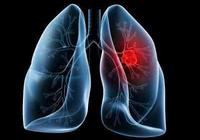 肺癌最實用的分型:小細胞肺癌和非小細胞肺癌