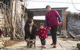 山東4歲女童斷骨10多次,兩條腿上都裝了髓內釘,媽媽希望治好她