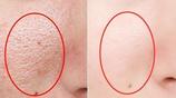 洗完臉還在先拍水再擦乳?不要再著急護膚了,步驟都搞錯啦!