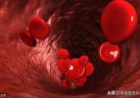 血液粘稠的人該吃什麼?這幾個食物,要多出現