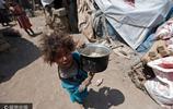 實拍也門戰火中流離失所的兒童