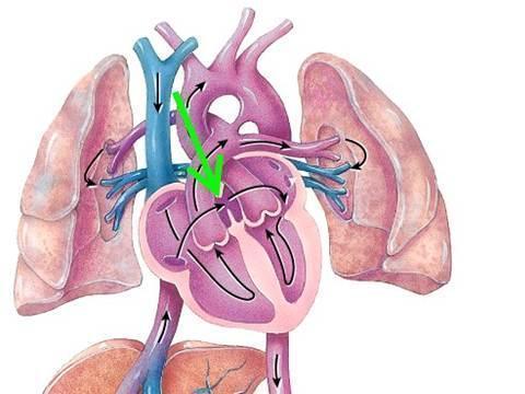 醫生披露:你的身體裡有沒有血栓,量量兩條小腿就知道!