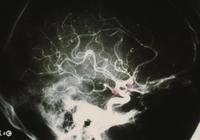 李氏電凝法血管內治療顱內微小動脈瘤