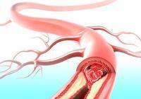 7種食物,保護血管、預防心腦血管疾病!