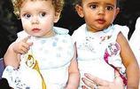 全球最奇特雙胞胎,有一對雙胞胎因為長相入選世界吉尼斯記錄