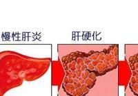 避免肝癌的危險因素,診斷肝癌新方法