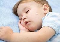兒科醫生:寶寶被蚊蟲叮咬後,別再這樣做了,大部分家長都搞錯了