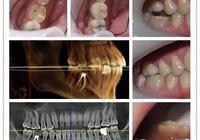 請問一下大家,為什麼去牙科醫院每次只看一顆牙,不管是什麼問題反正只看一顆,為什麼?
