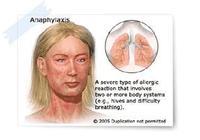 皮膚科:蕁麻疹到底是什麼?為什麼會得蕁麻疹?
