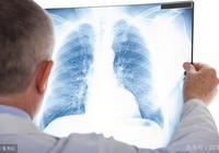 肺部檢查出磨玻璃結節會不會是肺癌,這種抽血檢查的方法有助診斷